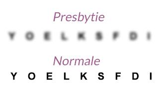 Johann Optique - Les troubles de la vue